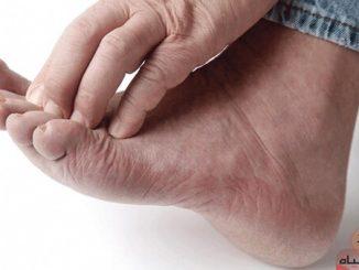 اسباب فطريات القدم